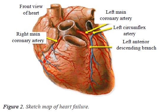 biomedres-heart-failure