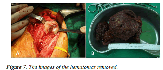 biomedres-hematomas-removed