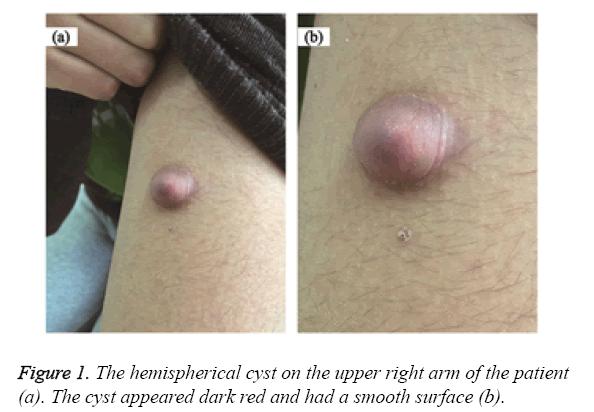 biomedres-hemispherical-cyst