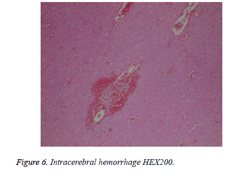 biomedres-hemorrhage-Intracerebral