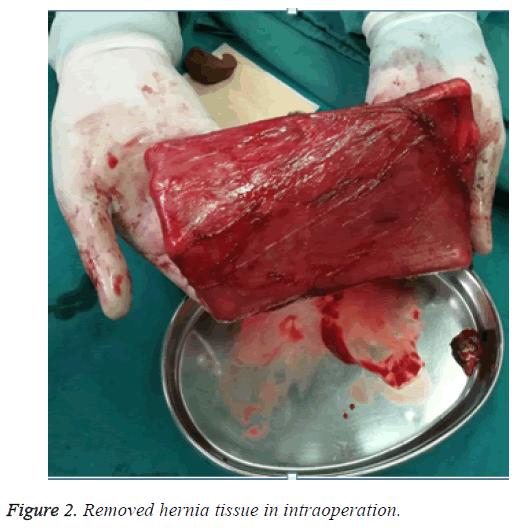 biomedres-hernia-tissue