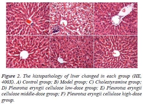 biomedres-histopathology-liver