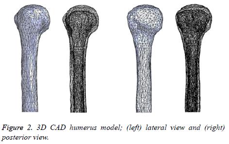 biomedres-humerus-model