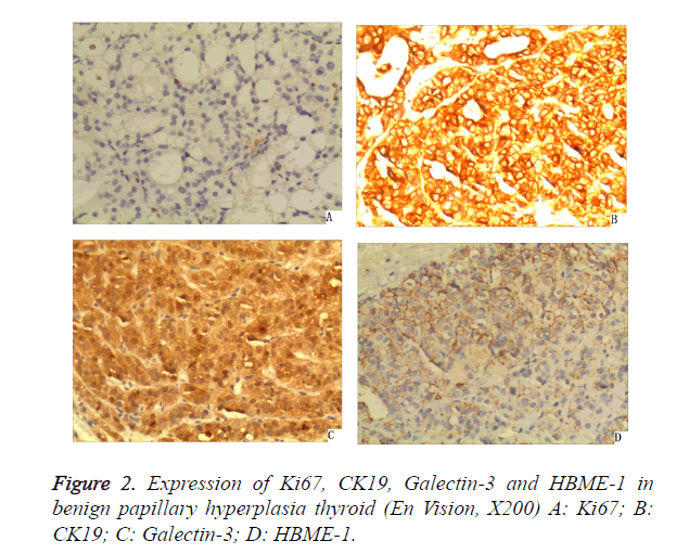 biomedres-hyperplasia-thyroid