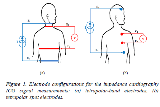 biomedres-impedance-cardiography
