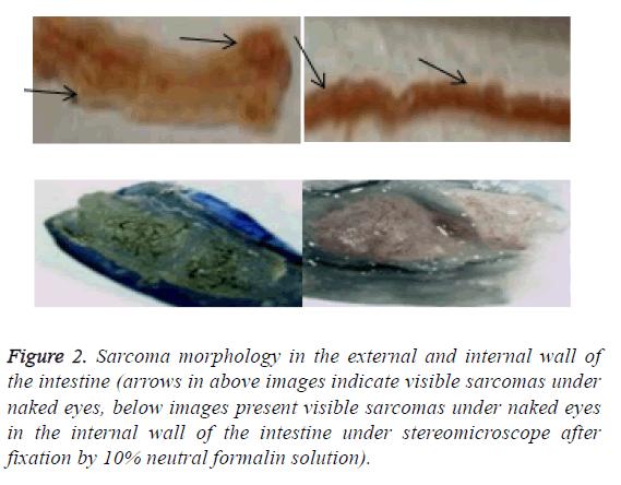 biomedres-indicate-visible-sarcomas
