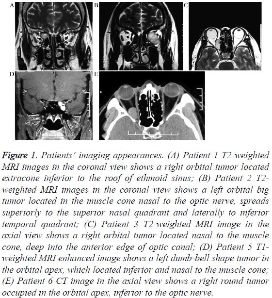 biomedres-inferior-optic-nerve