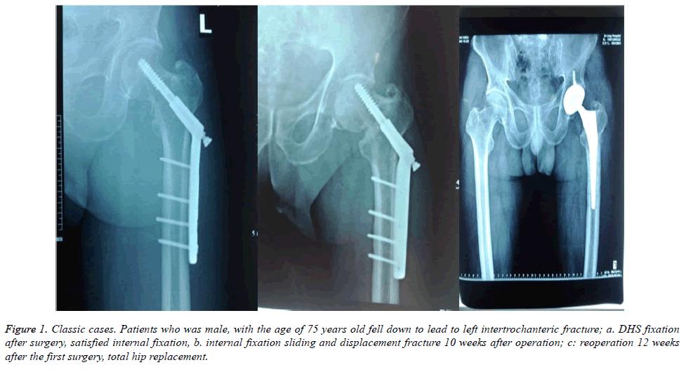 biomedres-intertrochanteric-fracture