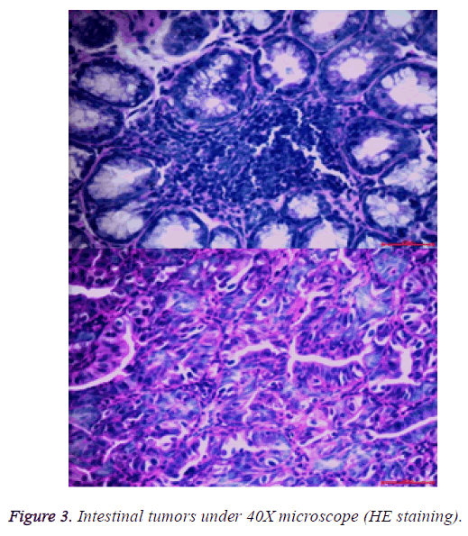 biomedres-intestinal-tumors