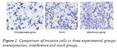 biomedres-invasive-cells