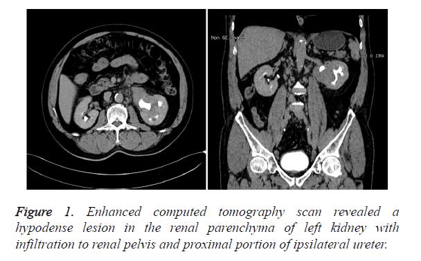 biomedres-ipsilateral-ureter
