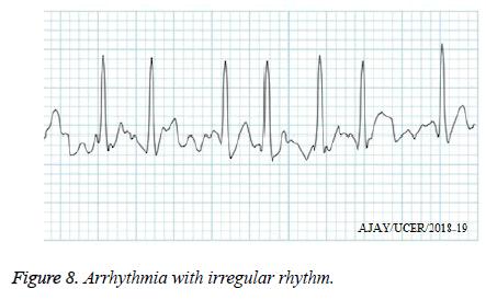 biomedres-irregular-rhythm