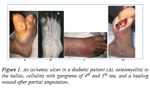 biomedres-ischemic-ulcer