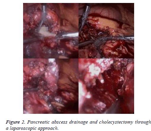 biomedres-laparoscopic-approach