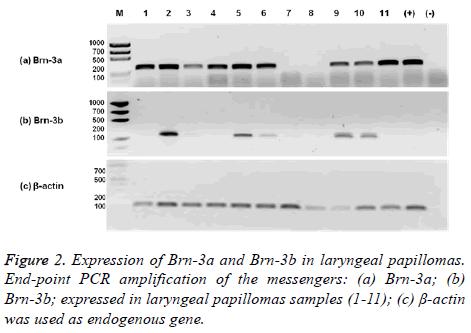 biomedres-laryngeal-papillomas