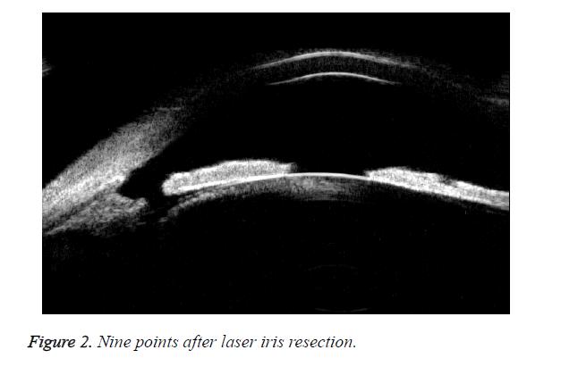 biomedres-laser-iris