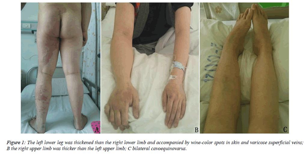 biomedres-left-lower-leg