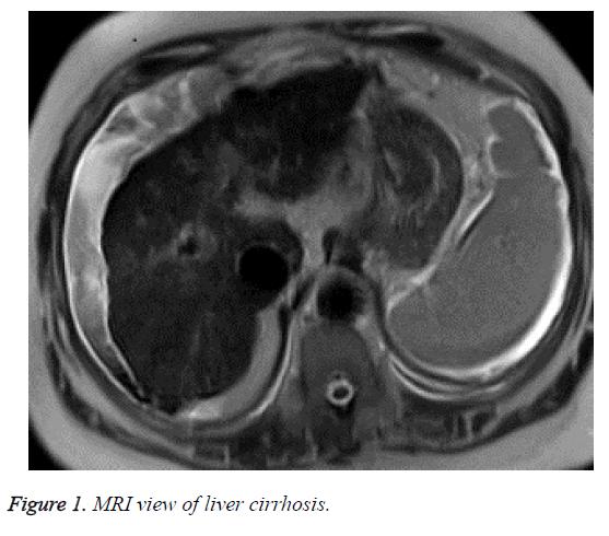 biomedres-liver-cirrhosis