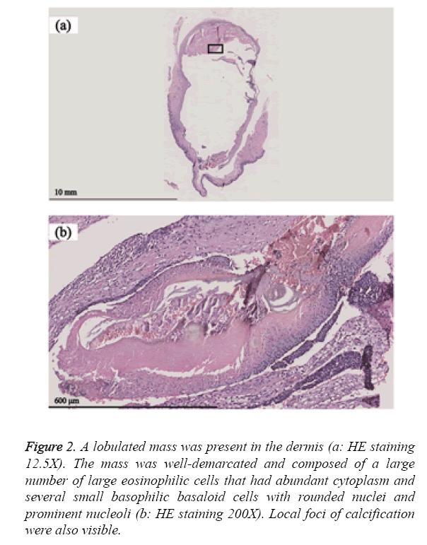 biomedres-lobulated-mass