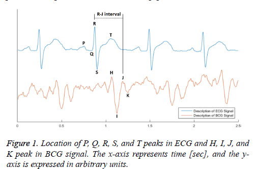 biomedres-location-BCG-signal