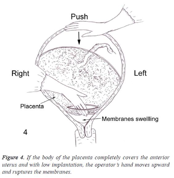biomedres-low-implantation