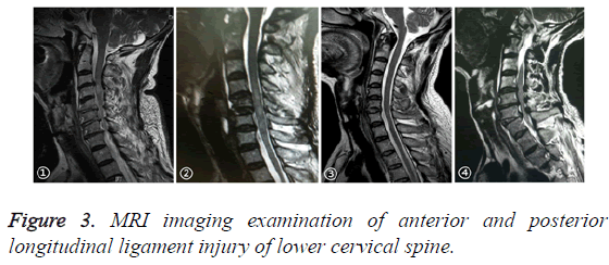 biomedres-lower-cervical-spine