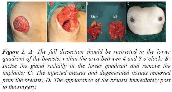 biomedres-lower-quadrant-breasts