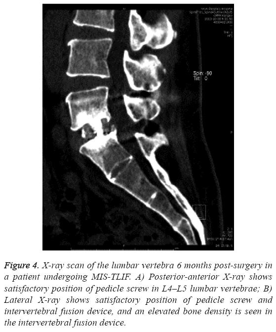 biomedres-lumbar-vertebra-6-months