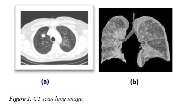 biomedres-lung-image
