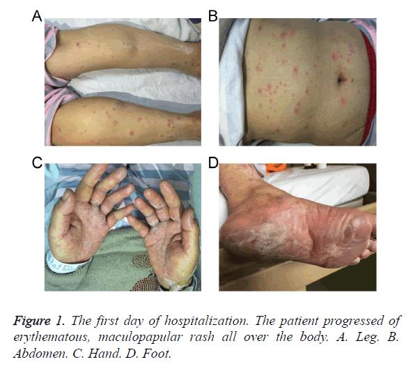 biomedres-maculopapular-rash