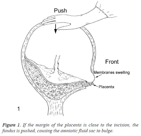 biomedres-margin-placenta