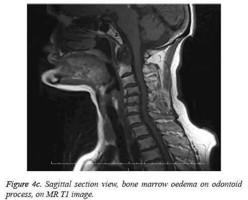biomedres-marrow-oedema