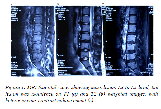 biomedres-mass-lesion