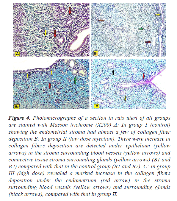 biomedres-masson-trichrome