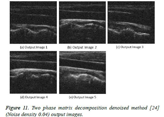 biomedres-matrix-decomposition