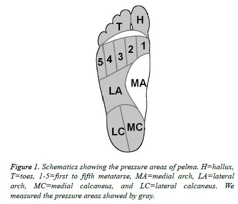 biomedres-medial-calcaneus