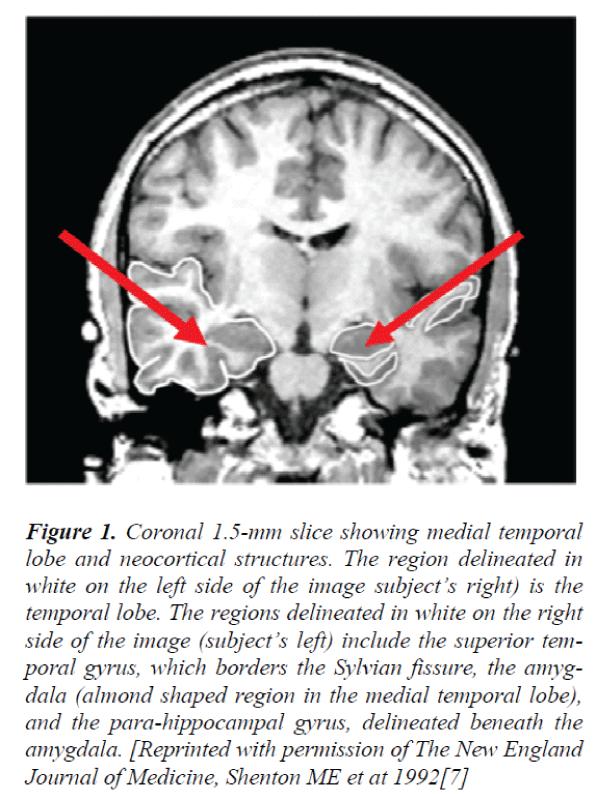 biomedres-medial-temporal-lobe