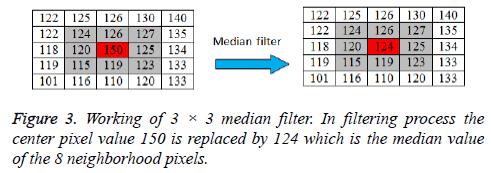 biomedres-median-filter