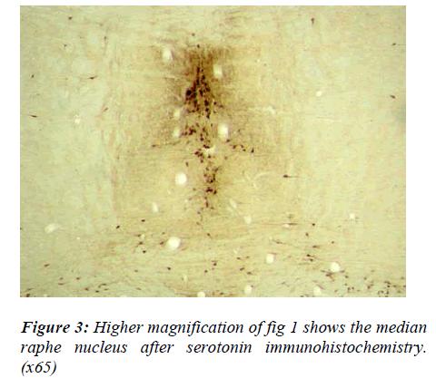 biomedres-median-nucleus-serotonin