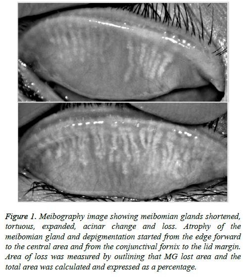 biomedres-meibomian-glands