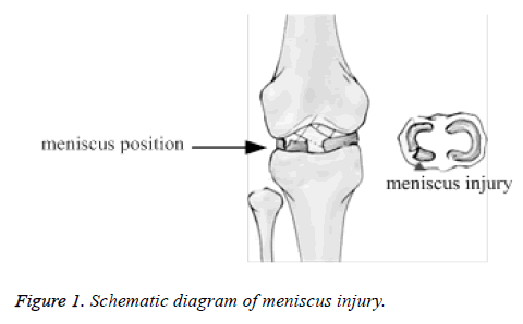 biomedres-meniscus-injury