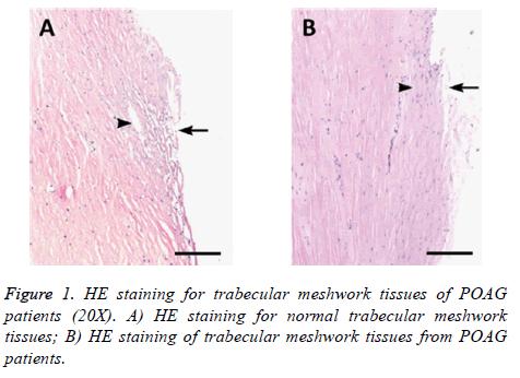 biomedres-meshwork-tissues