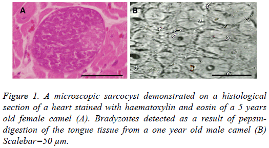 biomedres-microscopic-sarcocyst