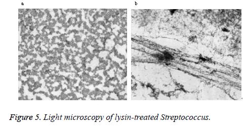 biomedres-microscopy-Streptococcus