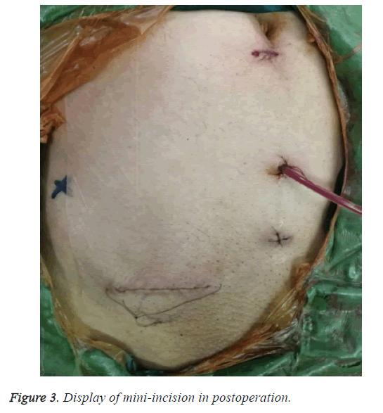 biomedres-mini-incision