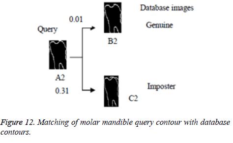 biomedres-molar-mandible