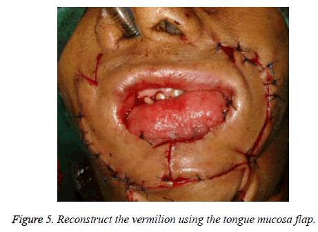 biomedres-mucosa-flap