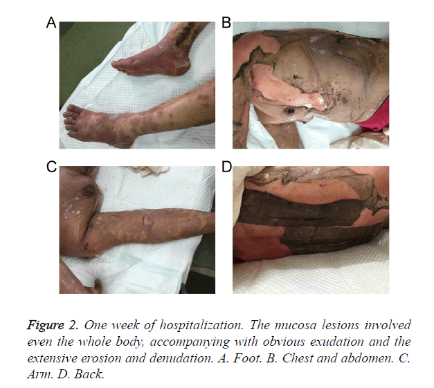 biomedres-mucosa-lesions