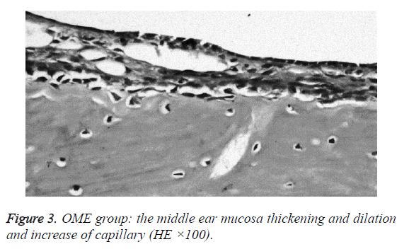 biomedres-mucosa-thickening