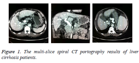 biomedres-multi-slice-spiral